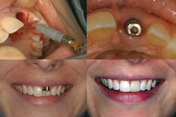 Почему лечение зубов в Китае стало так популярно?