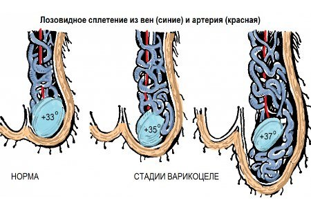 Способы лечения варикоцеле в зарубежных клиниках