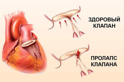 Пролапс митрального клапана - норма или патология?