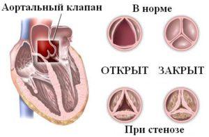 Aortic-valve-stenosis