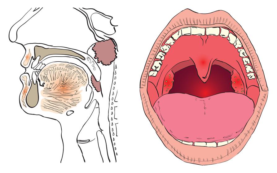 Методы лечения рака гортани в Израиле