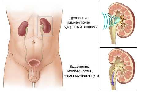Droblenie-kamney-v-pochkah-ultrazvukom