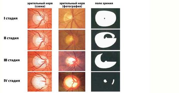 Stadii-atrofii-zritelnogo-nerva