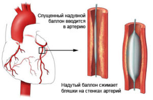 balloons-angioplasty