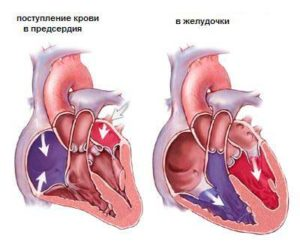 heart_disease_treatment_israel