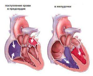 heart_disease_treatment_israel
