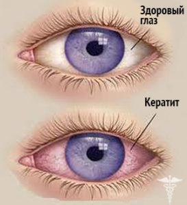 keratit-simptomy