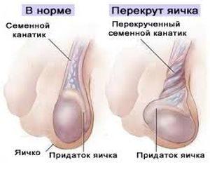 laparoskapiya_pri_varikocele_01