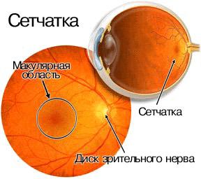 setchatka1