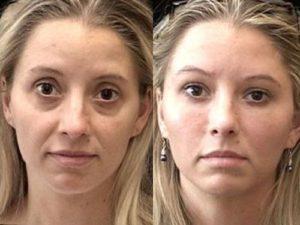 Что такое армирование лица ? Золотые нити в косметологии - отзывы