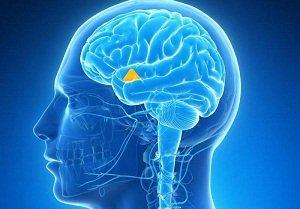 Что такое заболевание гипоталамуса? Симптомы и лечение
