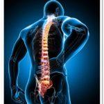 Что такое конский хвост в позвоночнике? Симптомы