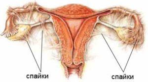 Последствия после удаления матки с миомой