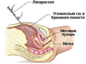 Удаление кисты яичника - восстановление после лапароскопии