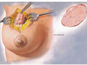 Фиброаденома молочной железы - как отличить от рака?