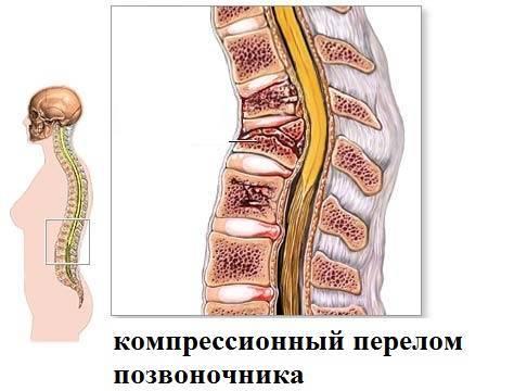 Компрессионный перелом позвоночника - лечение и реабилитация