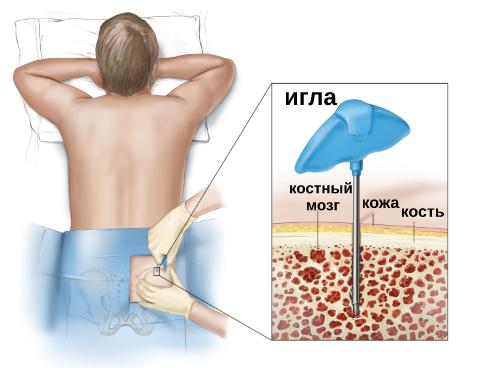 Как делают пересадку костного мозга?