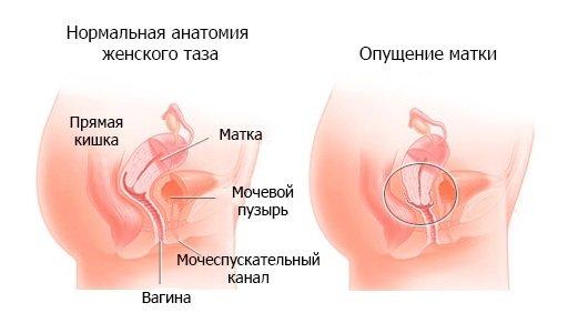 Что делать при опущение матки? Методы лечения