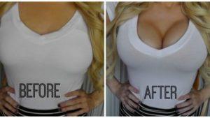 Лазерная коррекция груди - увеличение и подтяжка