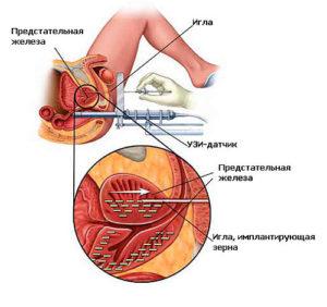 Радикулит и простата