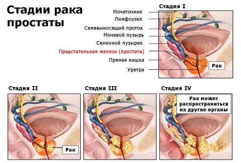 Удаление опухали предстательной железы