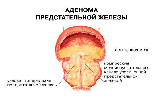 Осложнения при лучевая терапия при раке простаты