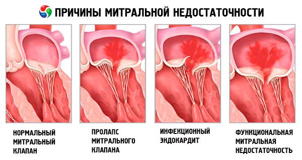 Гипертония 1 2 3 и 4 степени  симптомы осложнения